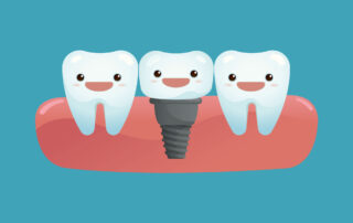 two teeth and dental implant in middle
