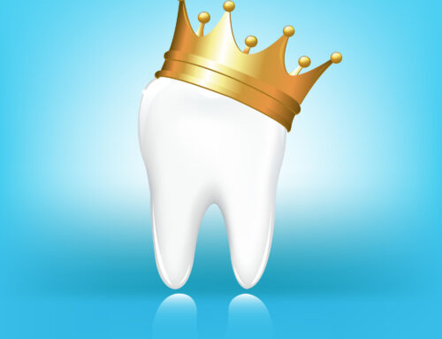 What to Know Before Getting A Tooth Crown