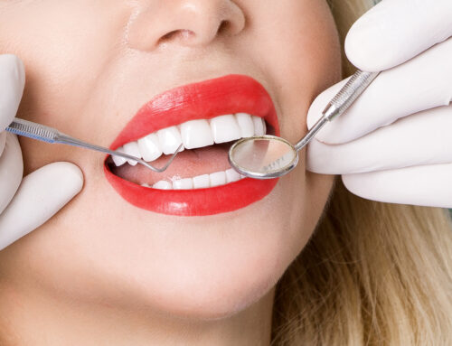 Tooth Veneer: Who, What, and How?